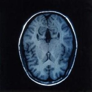 New approach discovered to detect brain tumours