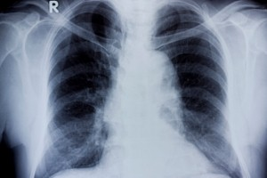 Breath test could provide a more effiecient test for conditions such as tuberculosis. Current tests for bacteria can take weeks to yield results. Infections of the lungs, such as tuberculosis, could soon be diagnosed by using a test that analyses the smel