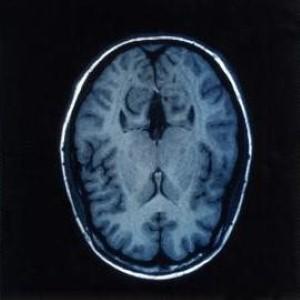 Image: Lancet