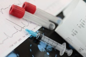 Blood test can identify stroke risk in atrial fibrillation patients
