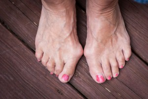 Podiatrists can help people avoid having to undergo surgery for common ailments like bunions. Image Credit: wanderluster