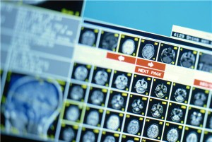 A new X-ray machine has been created to address the specific needs of developing countries. Image Credit: Liquid Library