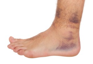 A new study has revealed the benefits of self-care for treating ankle pain. Image: luissantos84 via iStock