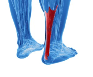 Poor hip flexibility and pain in the Achilles tendon have been linked in a new study. Image: goa_novi via iStock