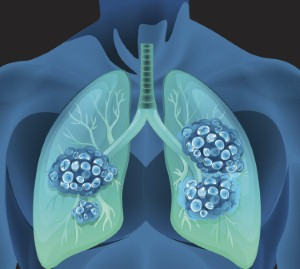 More specialist nurses are needed to care for lung cancer patients in the UK, a new report has found. Image: blueringmedia via iStock