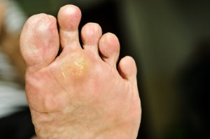 What is the link between thickened skin on the soles and oesophageal cancer? Image: TPAP8228 via iStock