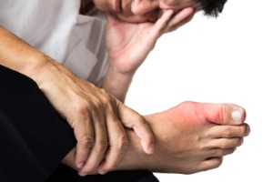 Diagnoses of gout are on the rise in the UK, statistics show. Image: ThamKC via iStock