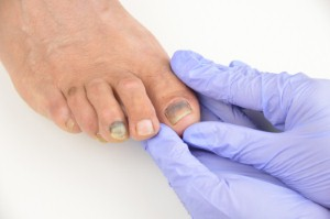 The Integrated Diabetic Footcare Faculty has won a top NHS award for successfully lowering diabetic foot-related amputation rates in East Devon. Image: Manuel Faba Ortega via iStock