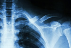NICE has updated its guidance on which patients should be prescribed bisphosphonates to prevent bone fractures. Image: stockdevil via iStock