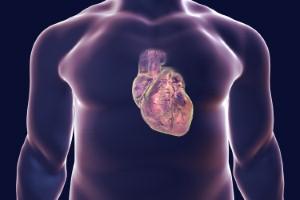 Anti-inflammatory drug canakinumab is being hailed as groundbreaking among heart doctors. Image: Dr_Microbe via iStock