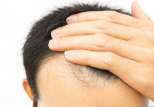 Men who go grey or bald prematurely may be more likely to suffer from coronary artery disease, new research suggests. Image: mraoraor via iStock