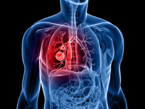 A new blood test has been developed that can rule out the possibility of lung cancer with a 98 per cent accuracy rate. Image: Eraxion via iStock