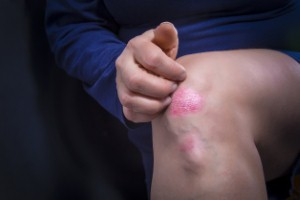 Guselkumab has been recommended by NICE for NHS use as a treatment for severe plaque psoriasis.