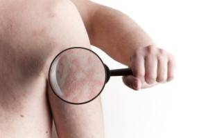 The drug Tremfya has been recommended for the treatment of plaque psoriasis by NICE and the SMC.