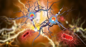 NICE has decided to approve ocrelizumab as a treatment for relapsing remitting multiple sclerosis on the NHS in England and Wales.