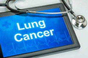 Alectinib has been approved by NICE for NHS use as a treatment of ALK-positive advanced non-small cell lung cancer.