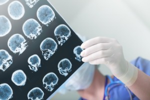 Researchers have discovered metallic changes in the brains of Alzheimers sufferers that could be used to develop new treatments for the condition.
