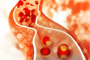 A new study has found high levels of a certain antibody can reduce the risk of heart attacks.