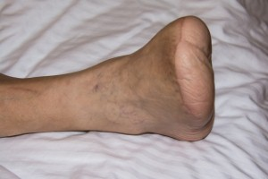 New research has revealed a significant rise in foot and toe amputations caused by diabetes.