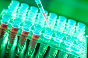 A cancer expert has issued a note of caution over suggestions that a new universal test for cancer may be on the way.
